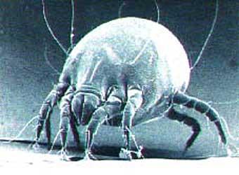 Клещ домашней пыли под микроскопом